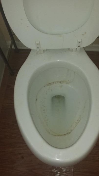 Before Toilet Cleaning by 1st Choice Cleaning in Rancho Cucamonga, CA